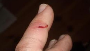 zranienie