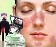 alergia kosmetyczna